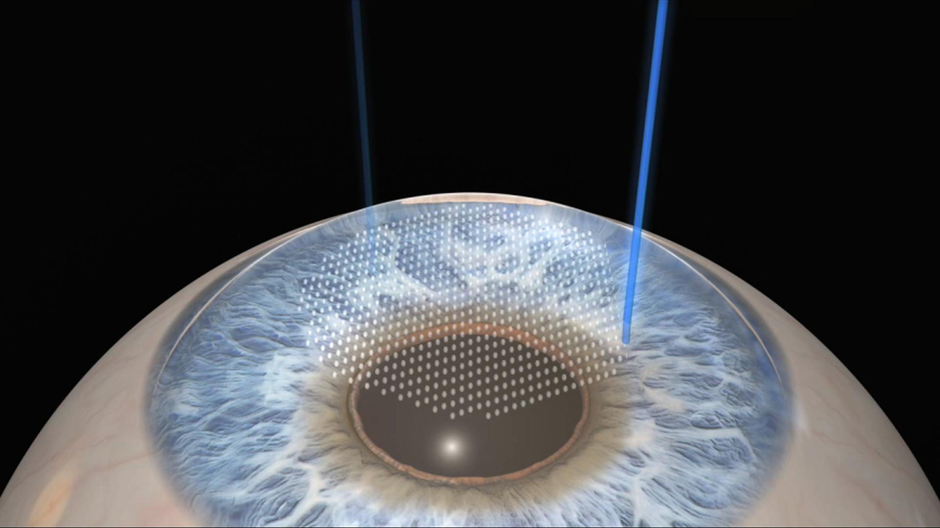 Lasik Technology To Boost Eye Refractive Surgeries In Kenya Eagle Eye Laser Centre